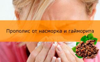 Лечение гайморита прополисом. домашний доктор