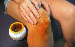 Способы лечения медом больных суставов