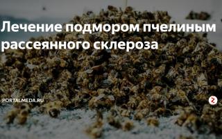 Пчелиный подмор: лечение рассеянного склероза