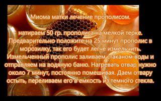 Лечение миомы и эндометриоза прополисом